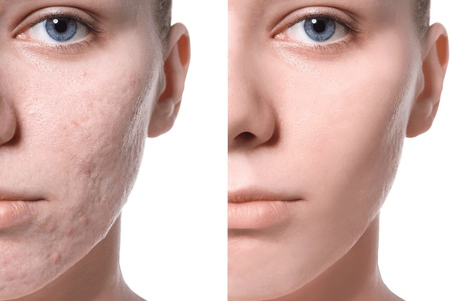 Treat Your Acne Scar with Laser Treatment